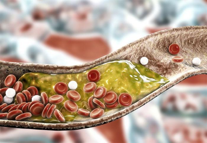 Kötü Kolesterol Diyeti