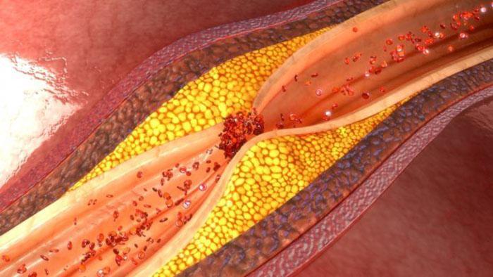 Kötü Kolesterol Nedir